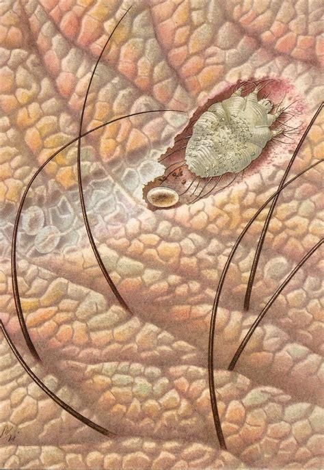 dog skin disease picture 10