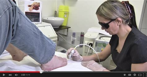 clear nail laser clinics picture 9