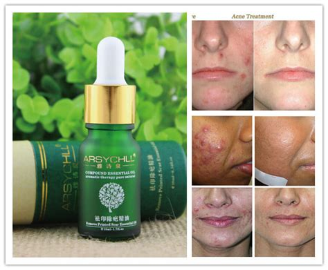 acne scars skin care picture 5