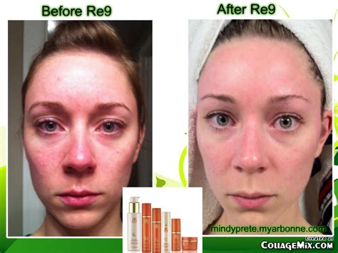 results of beautiful skin from soy milk picture 4