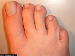 fungus toenails picture 6