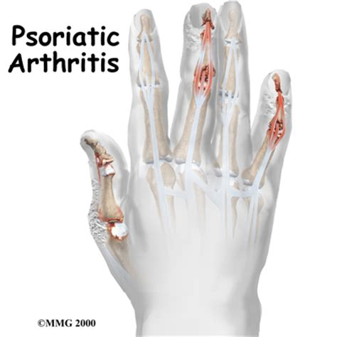 does seasilver help arthritis in the joints picture 4