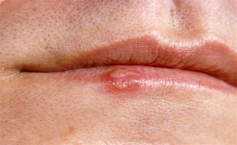 cold sores genital herpes picture 2