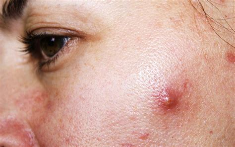 get rid of cystic acne picture 1