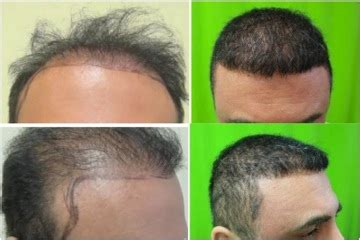 cost of hair transplants picture 7