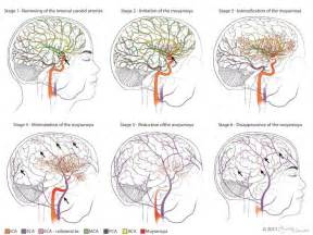 cerebral blood flow picture 6