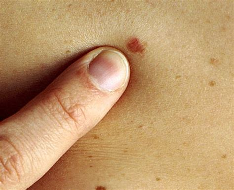 about skin cancer picture 6