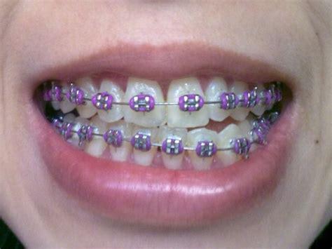 colored braces h picture 17