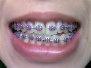 colored braces h picture 15