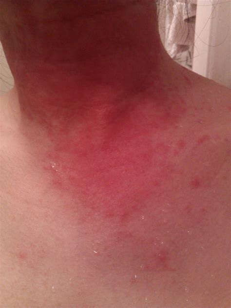 cephalexin itchy skin picture 10