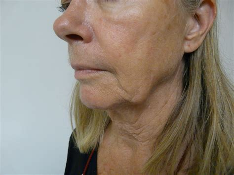 rosacea and skin cancer picture 13