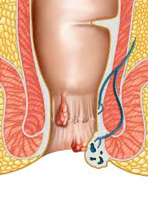 home remedies para sa sakit na urinary tract picture 16