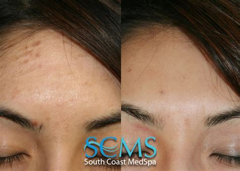 acne scar removal in bay area picture 9