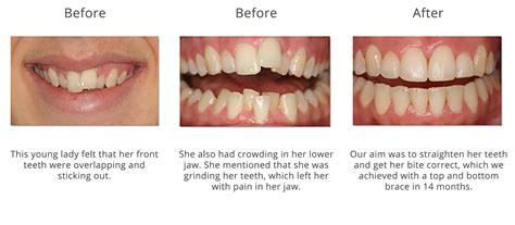 do your teeth change position picture 6