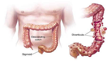 bleeding from colon picture 2