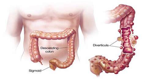 colon pain picture 6