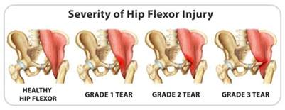 hip flexor muscle pull picture 10