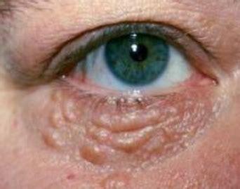 cholestrol deposits on skin picture 14