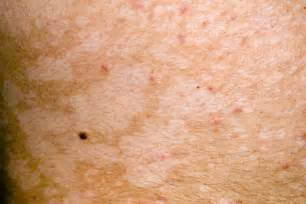 yeast infections skin picture 5
