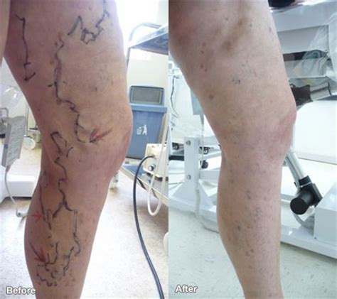 spider vein removal :au picture 3