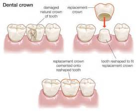 crowns or caps for front teeth that have picture 5