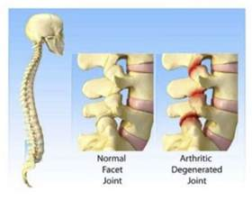 facet joint specialists and australia picture 13