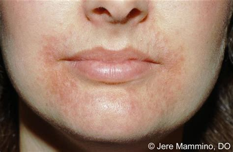 flaky skin and rosacea picture 6