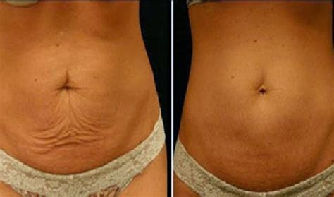 weight loss skin boils picture 2