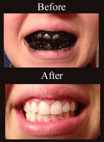 how to whiten teeth picture 1