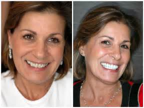 teeth whitening stars picture 11