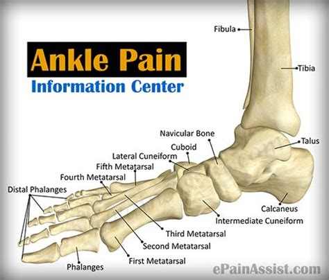 ankle joint pain picture 3