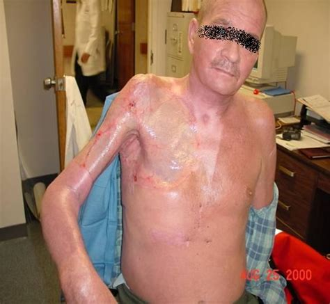 crystal meth and acne picture 13