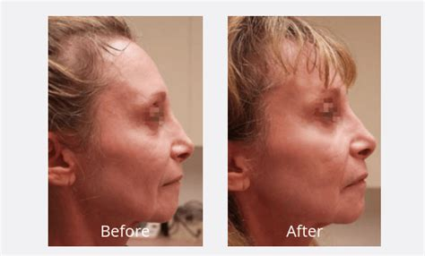is sculptra good for acne scaring picture 18