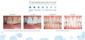 opalescence teeth whiten picture 10