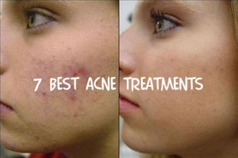 best acne medication picture 9