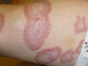 skin granulomas picture 3