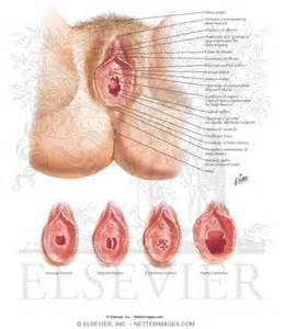 iran vaginal picture 1