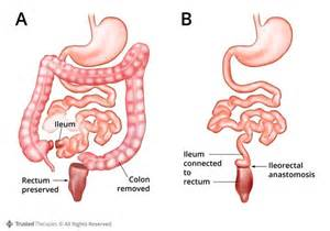 colon resection for crohn's disease picture 1
