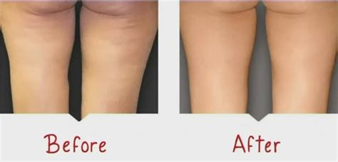 cellulite surgery picture 7