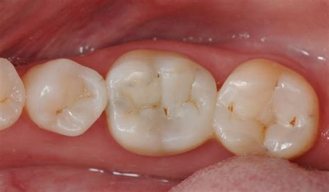 filling cavities in wisdom h picture 6