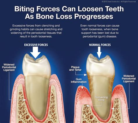causes of teeth problems picture 7