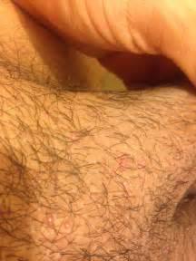 molescus pubic area picture 2