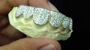10k iced out gold teeth picture 1