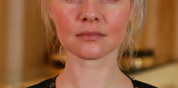 rosacea on face picture 9
