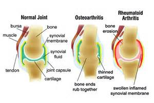 bursitis in many joints picture 17