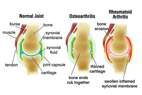 causes of body joint pain inflammation picture 15