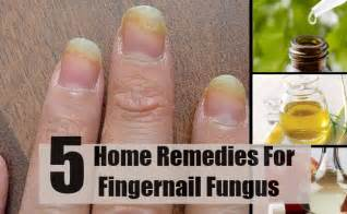home remedy for nail fungus picture 6