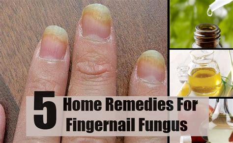 natural cure for nail fungus picture 7