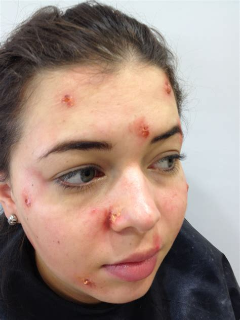 red spots from acne picture 2