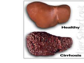 cirrhosis of the liver due to alcohol picture 18
